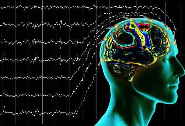 электроэнцефалография для водительской справки